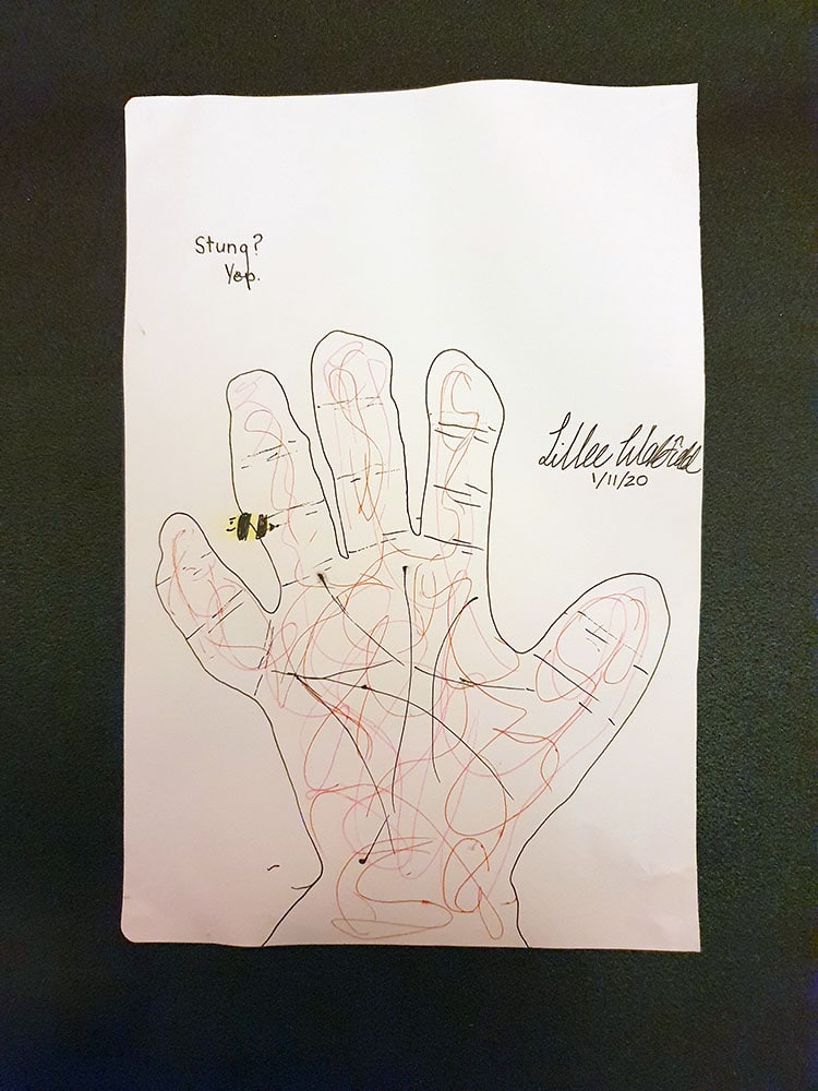 Signed and dated sketch of a hand being stung by a bee. Captions says: Stung? Yep.